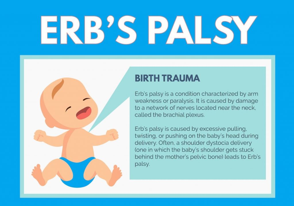 Common causes of ERB Palsy